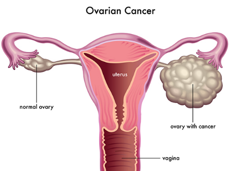 Ovarian Cancer Image